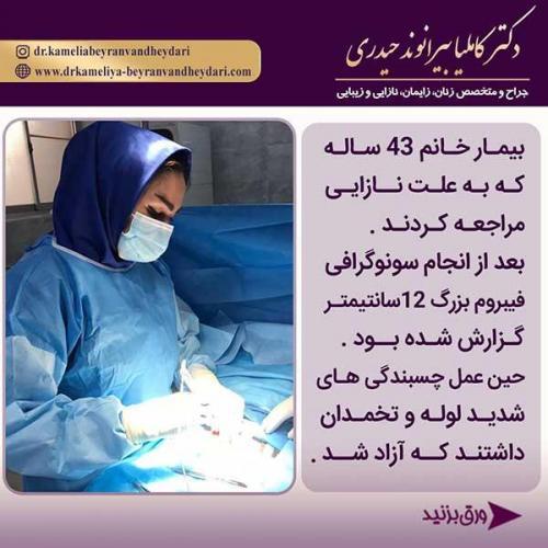 جراحی-فیبروم-رحمی-1