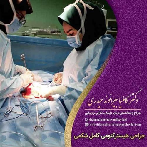 جراحی-هیسترکتومی-کامل-شکمی